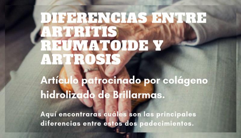 Diferencias entre artritis y artrosis.