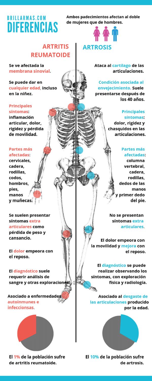 Infografía de las diferencias entre la artrosis y artritis.